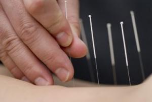Akupunktør Hellerup